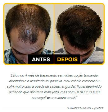 HairLossBlocker antes e depois