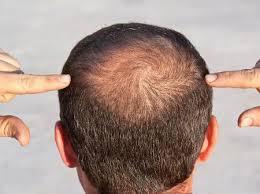 Tribulus Terrestris causa queda de cabelo?